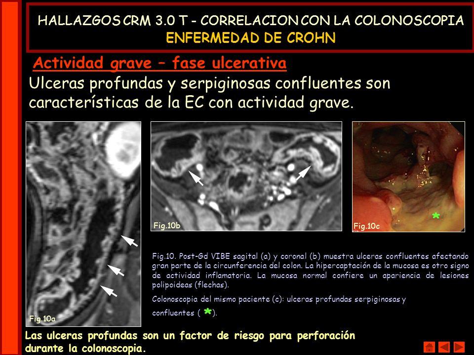 Ulceras profundas y serpiginosas confluentes son características de la EC con actividad grave. Las ulceras profundas son un factor de riesgo para perf