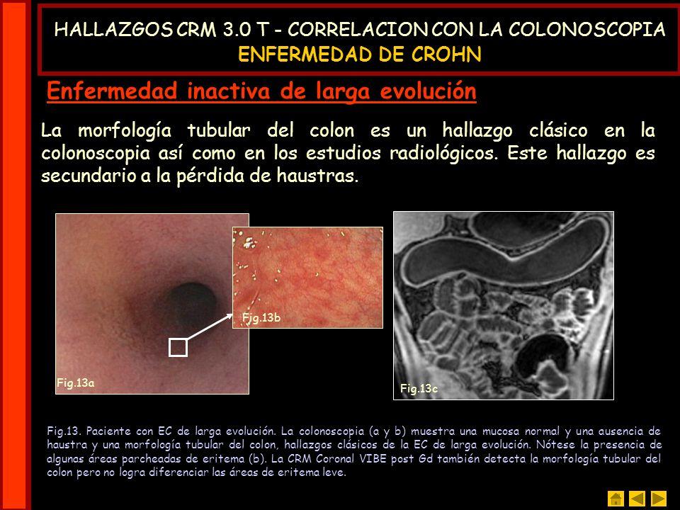 Los pólipos solitarios gigantes no pueden ser diferenciados de los pólipos adenomatosos mediante la CRM.