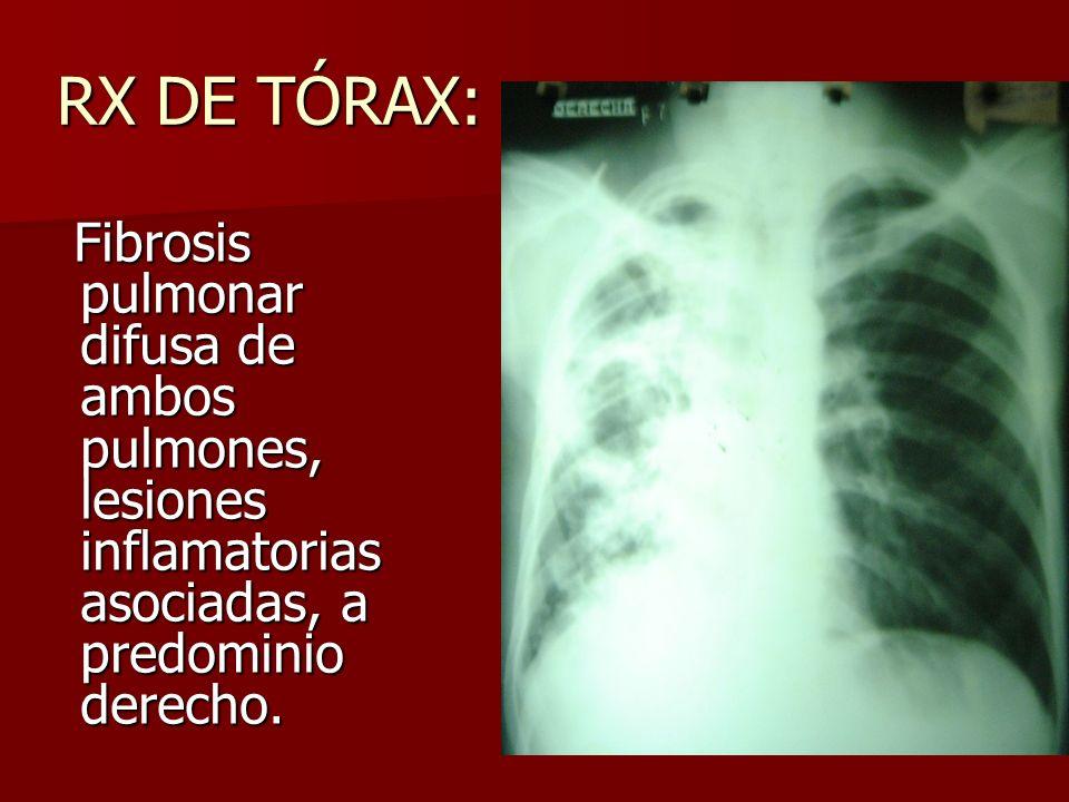 RX DE TÓRAX: Fibrosis pulmonar difusa de ambos pulmones, lesiones inflamatorias asociadas, a predominio derecho.