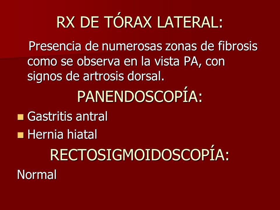 RX DE TÓRAX LATERAL: Presencia de numerosas zonas de fibrosis como se observa en la vista PA, con signos de artrosis dorsal.