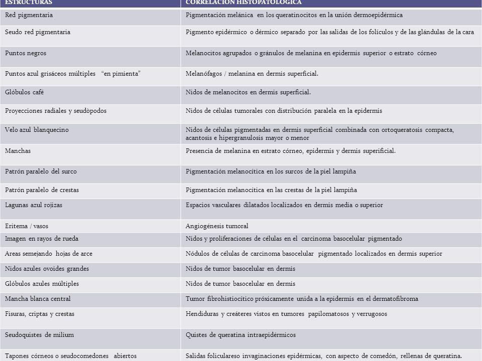 Patrón retículo-globular Benignidad: distribución simétrica de glóbulos y retículos.