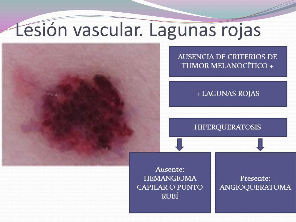 Carcinoma basocelular Criterio negativo Criterios positivos: Nidos grandes ovoides Glóbulos múltiples Áreas en hoja de arce Rueda de carro Teleangiectasias ramificadas Ulceración Ausencia de red