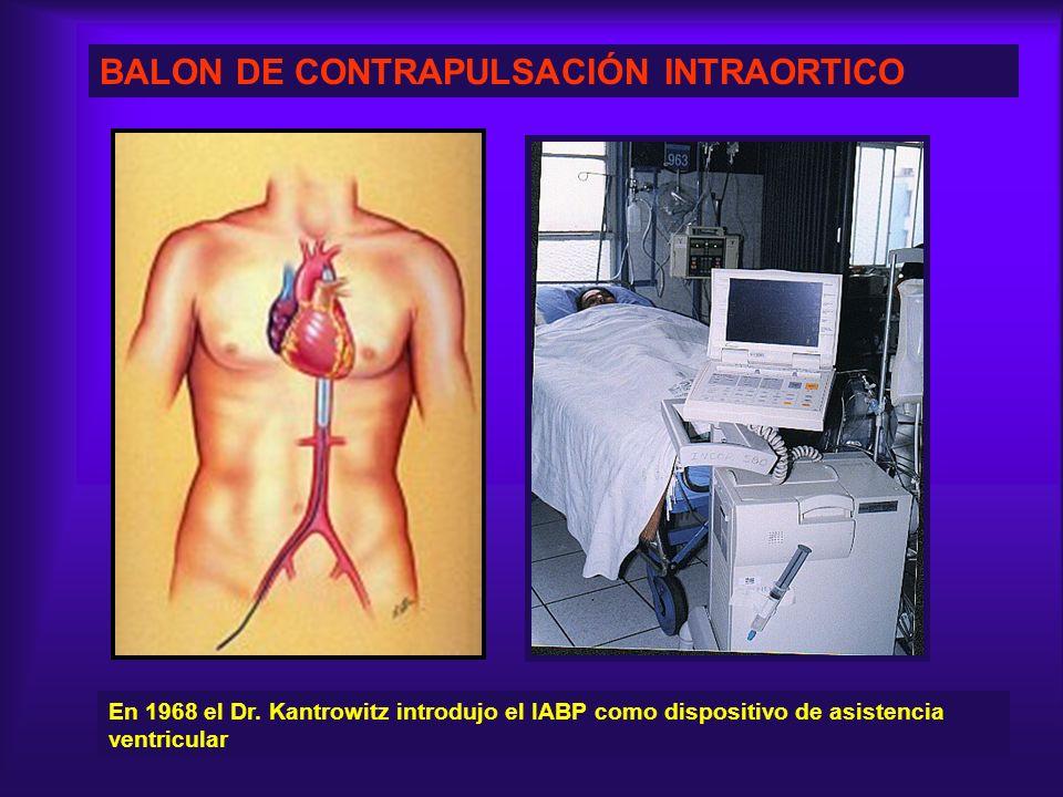 BALON DE CONTRAPULSACIÓN INTRAORTICO En 1968 el Dr. Kantrowitz introdujo el IABP como dispositivo de asistencia ventricular