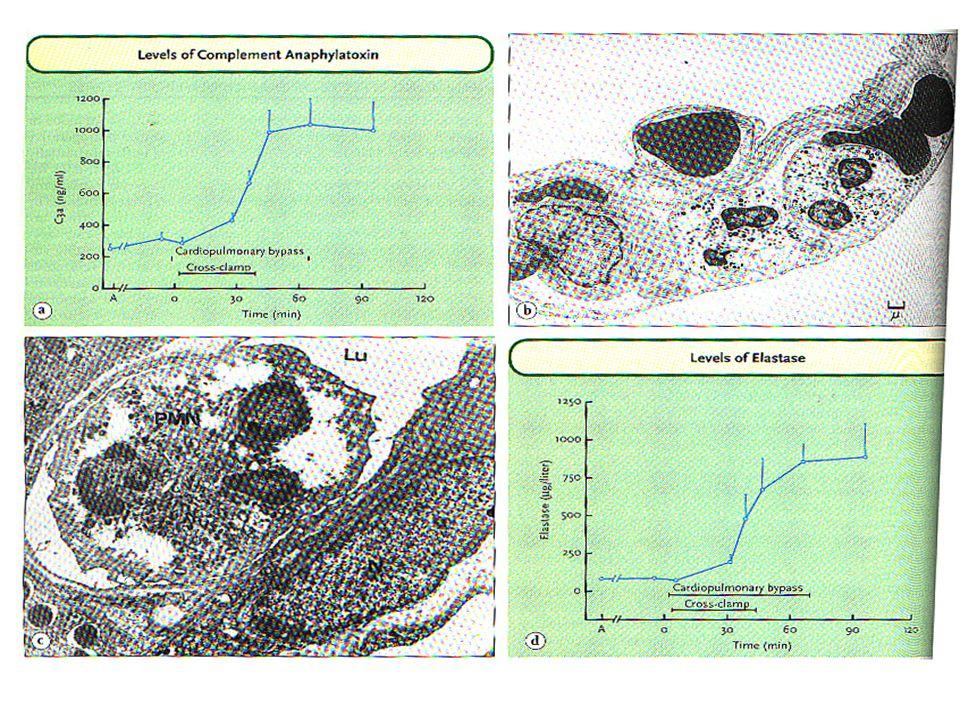 A r r i t m i a s Fibrilación auricular -Incidencia de hasta 30%, en el 2do – 3er días, paroxístico y autocontrolado.