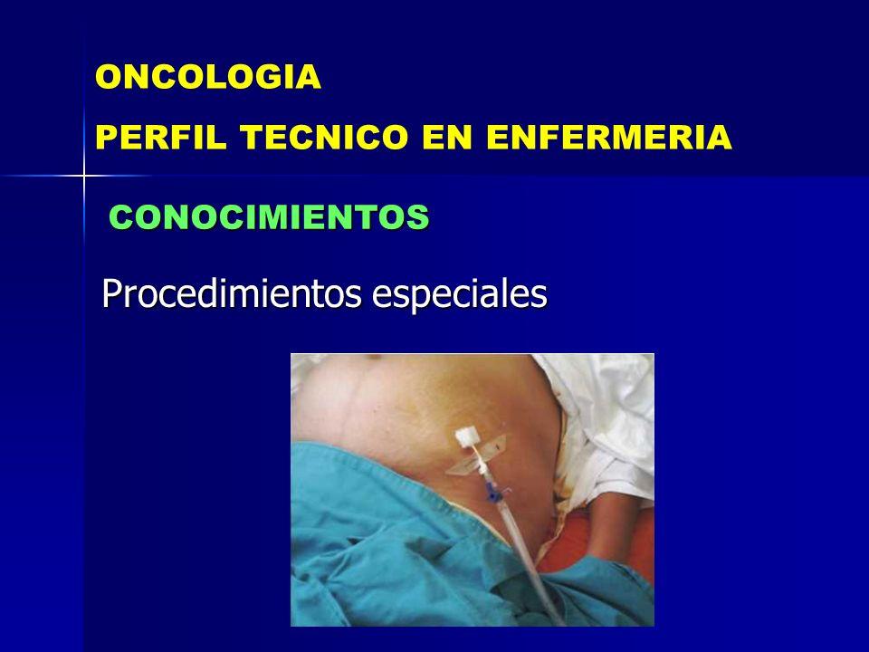 Procedimientos especiales ONCOLOGIA PERFIL TECNICO EN ENFERMERIA CONOCIMIENTOS