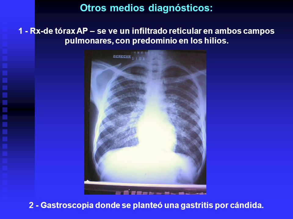 Otros medios diagnósticos: 1 - Rx-de tórax AP – se ve un infiltrado reticular en ambos campos pulmonares, con predominio en los hilios. 2 - Gastroscop