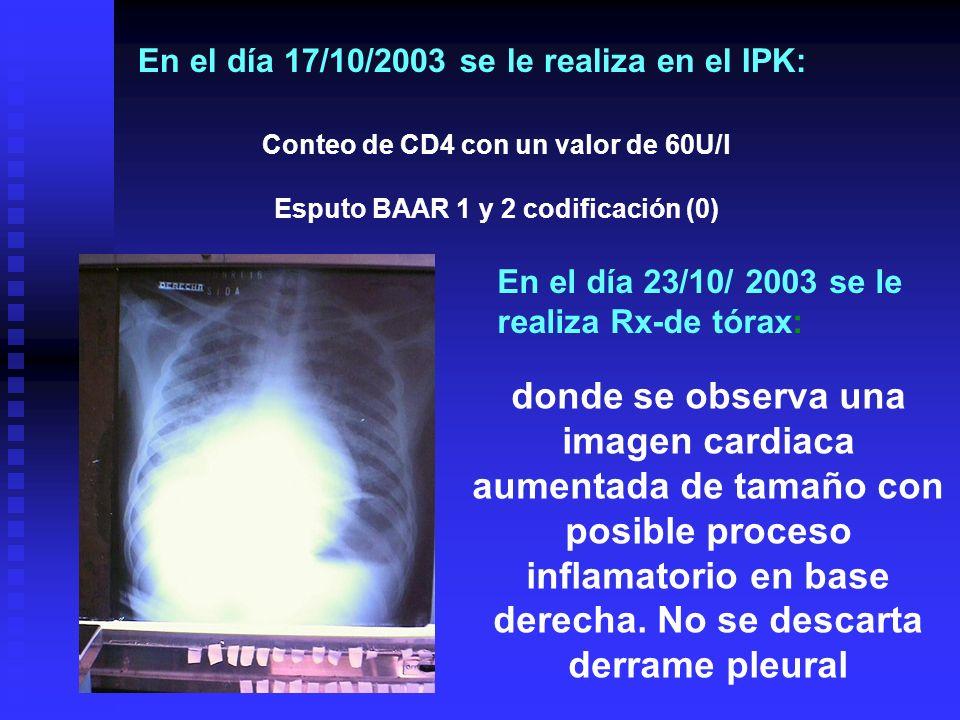 En el día 17/10/2003 se le realiza en el IPK: donde se observa una imagen cardiaca aumentada de tamaño con posible proceso inflamatorio en base derech