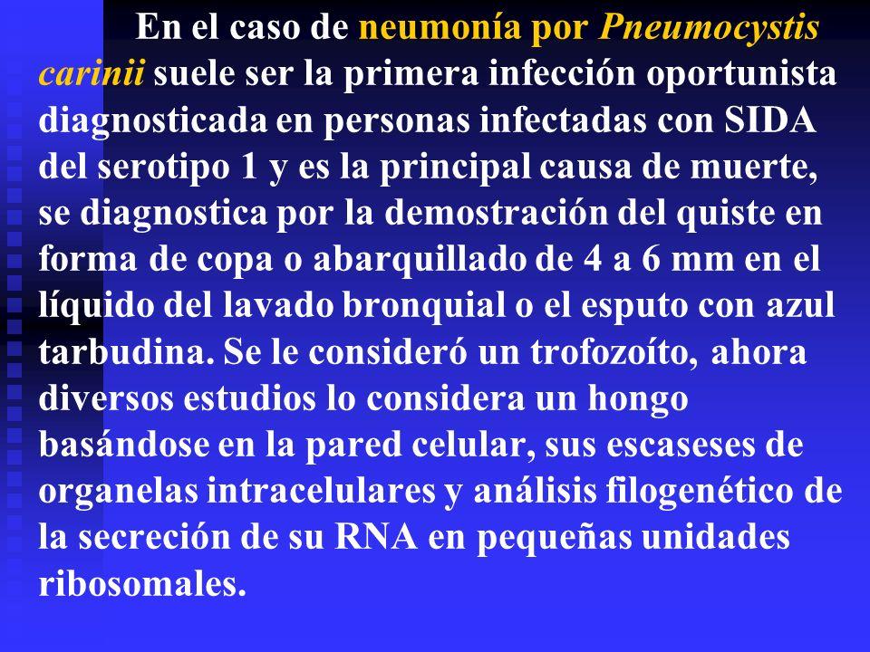 En el caso de neumonía por Pneumocystis carinii suele ser la primera infección oportunista diagnosticada en personas infectadas con SIDA del serotipo