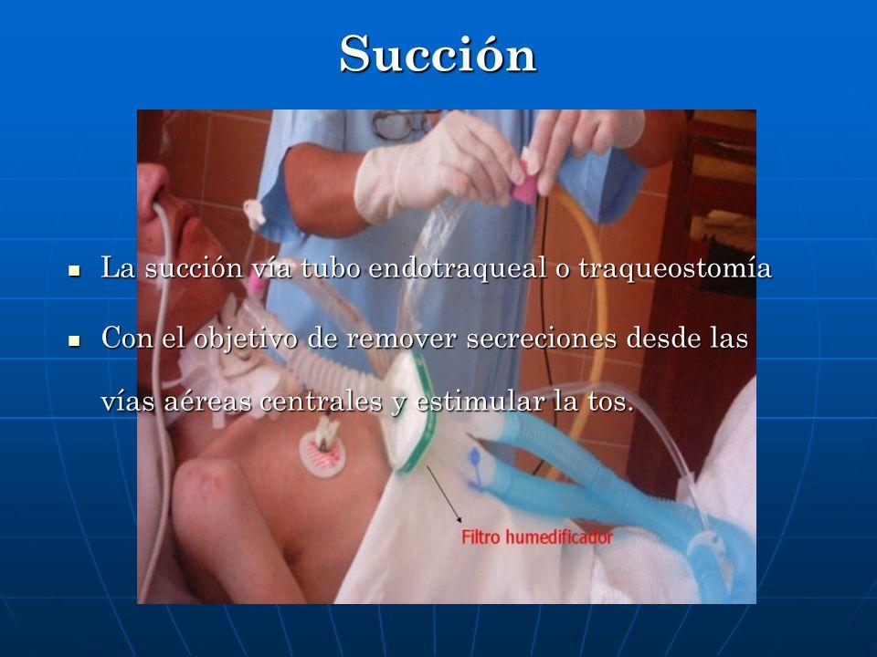 Succión La succión vía tubo endotraqueal o traqueostomía La succión vía tubo endotraqueal o traqueostomía Con el objetivo de remover secreciones desde