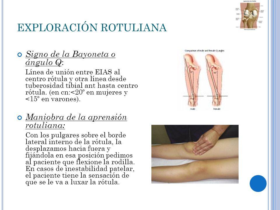 C ONDROMALACIA ROTULIANA Afectación del cartílago articular de la rótula en forma de reblandecimiento,fisura o úlcera según el momento evolutivo.