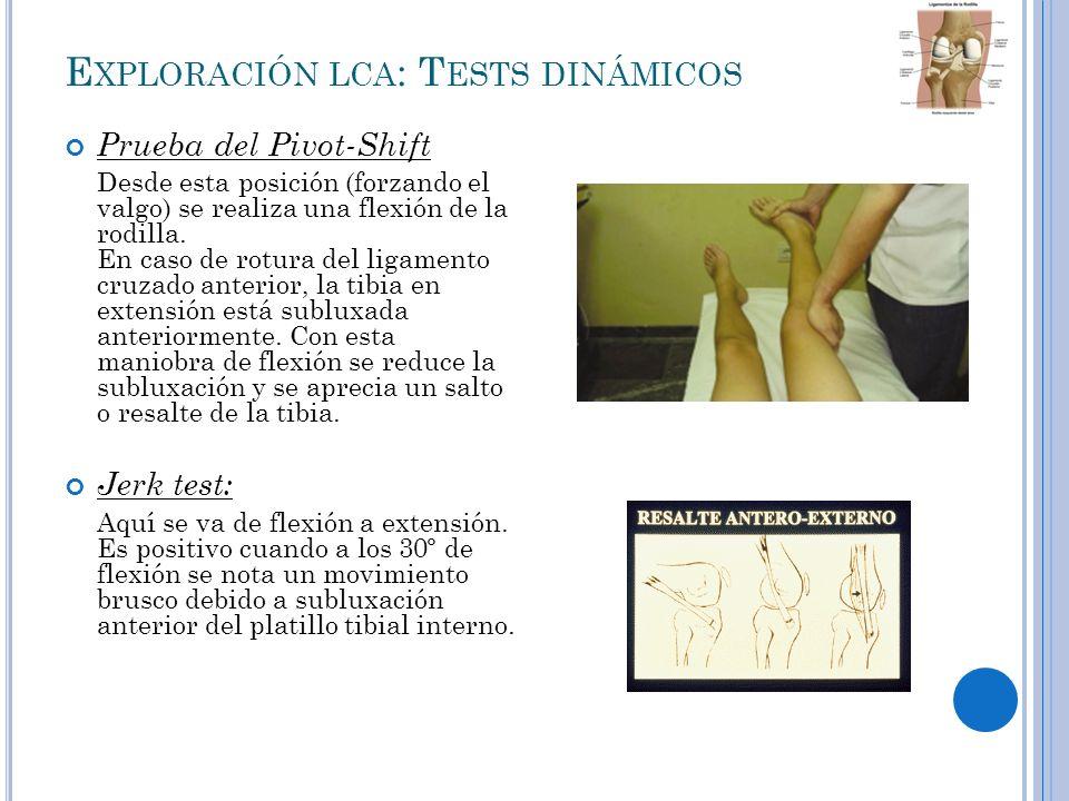 E XPLORACIÓN LCP Maniobra del cajón posterior: Es la prueba más sensible para valorar el ligamento cruzado posterior.