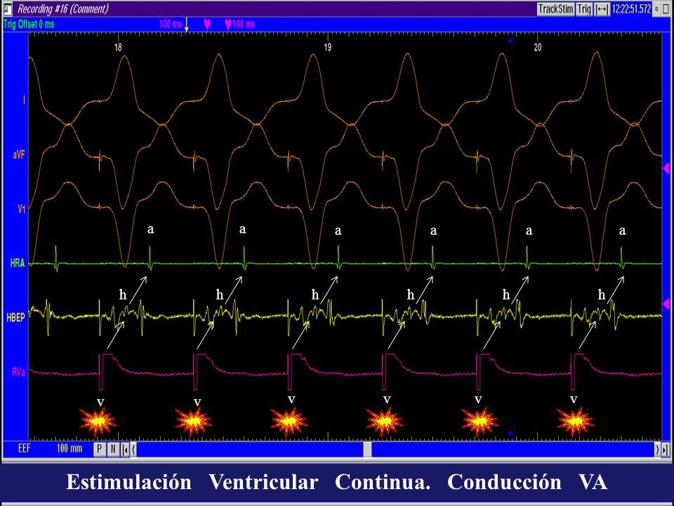 aa aaaa vv vvvv hhhhhh Estimulación Ventricular Continua. Conducción VA