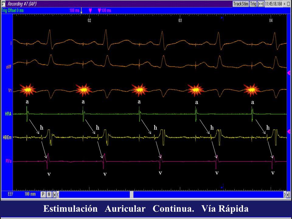 aaa aa vv vvv hhhhh Estimulación Auricular Continua. Vía Rápida