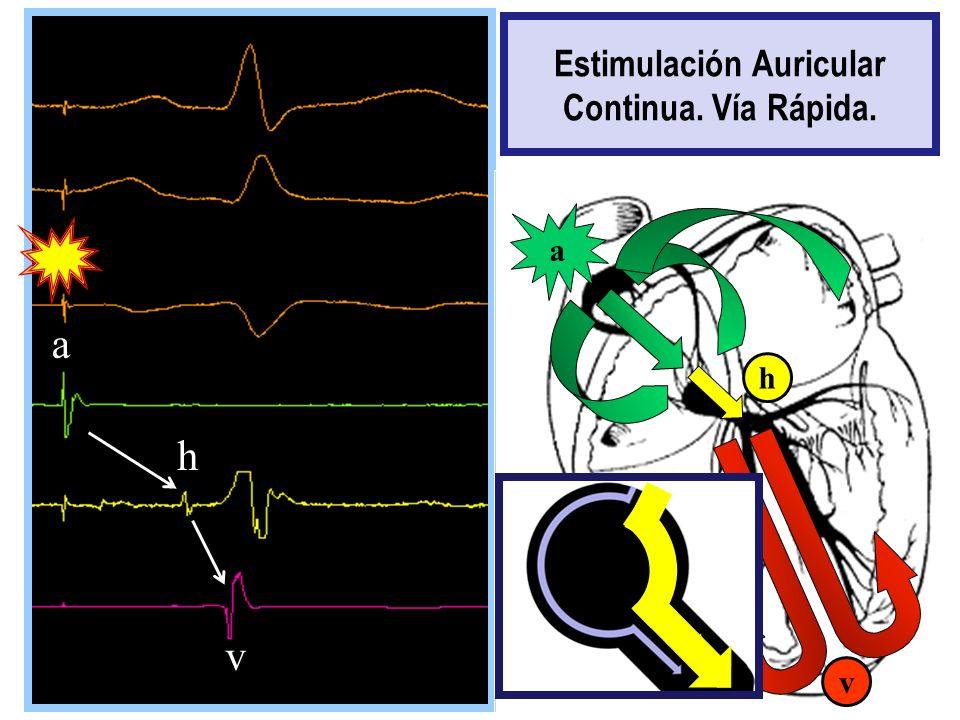 a a h v v h a Estimulación Auricular Continua. Vía Rápida.