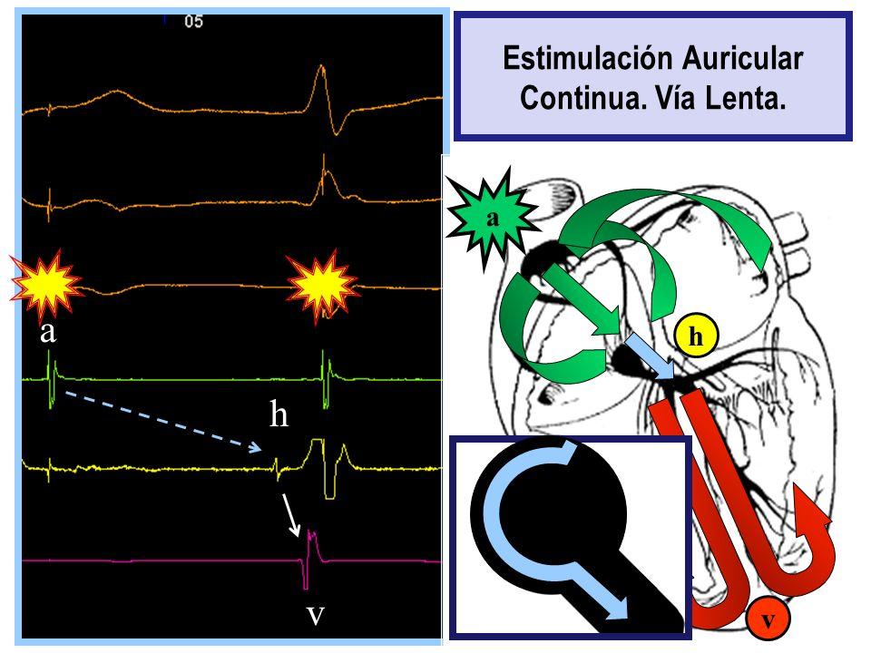 h a h v a v Estimulación Auricular Continua. Vía Lenta.