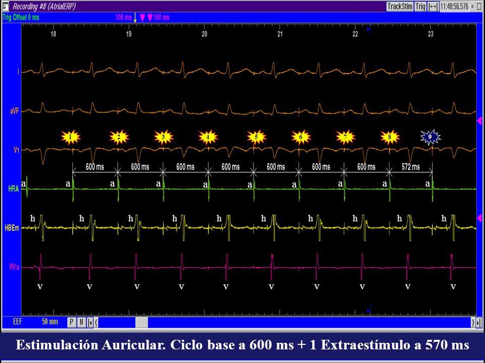 19 aaa aaa aaa vvvvvvvvvv a 2345678 hhhhhhhhhh Estimulación Auricular. Ciclo base a 600 ms + 1 Extraestímulo a 570 ms
