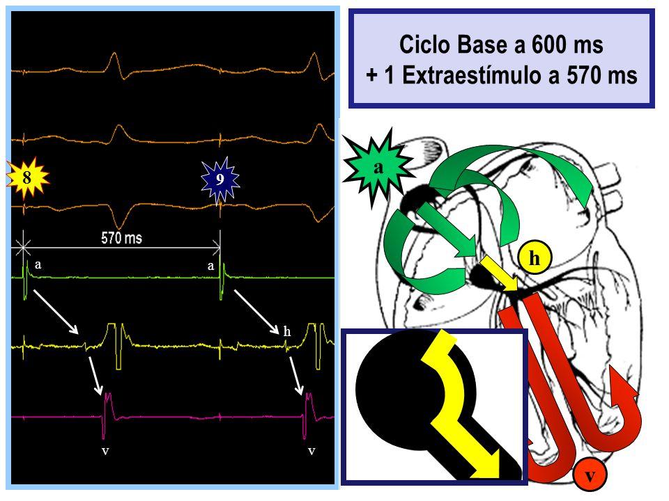 8 9 a a vv h a v h Ciclo Base a 600 ms + 1 Extraestímulo a 570 ms