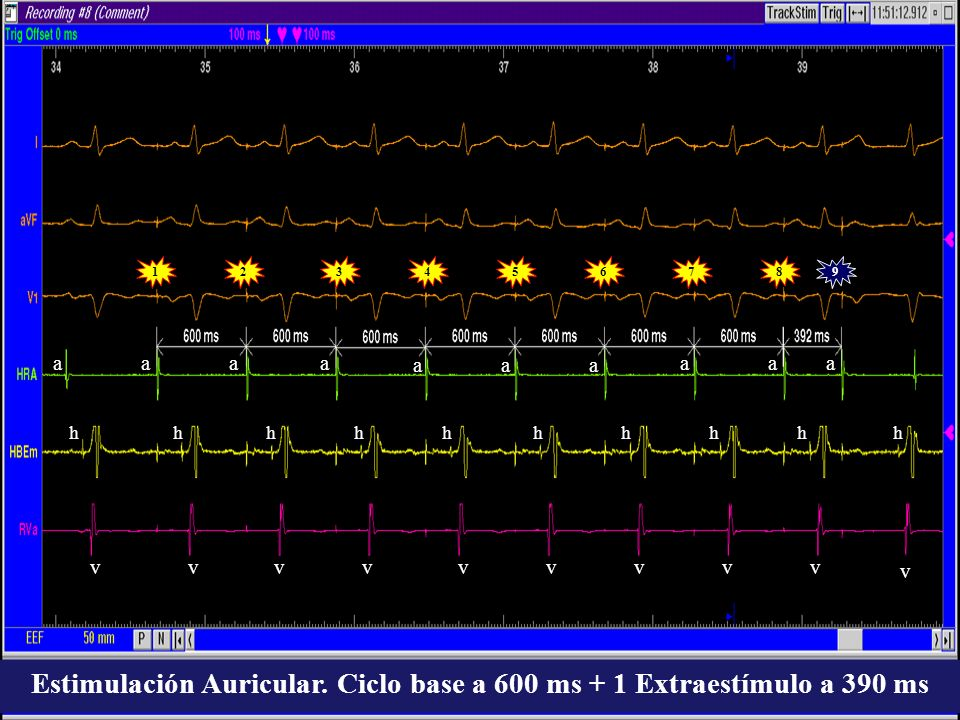 192345678 aaa aaa aaaa vvvvvvvvv v hhhhhhhhhh Estimulación Auricular. Ciclo base a 600 ms + 1 Extraestímulo a 390 ms