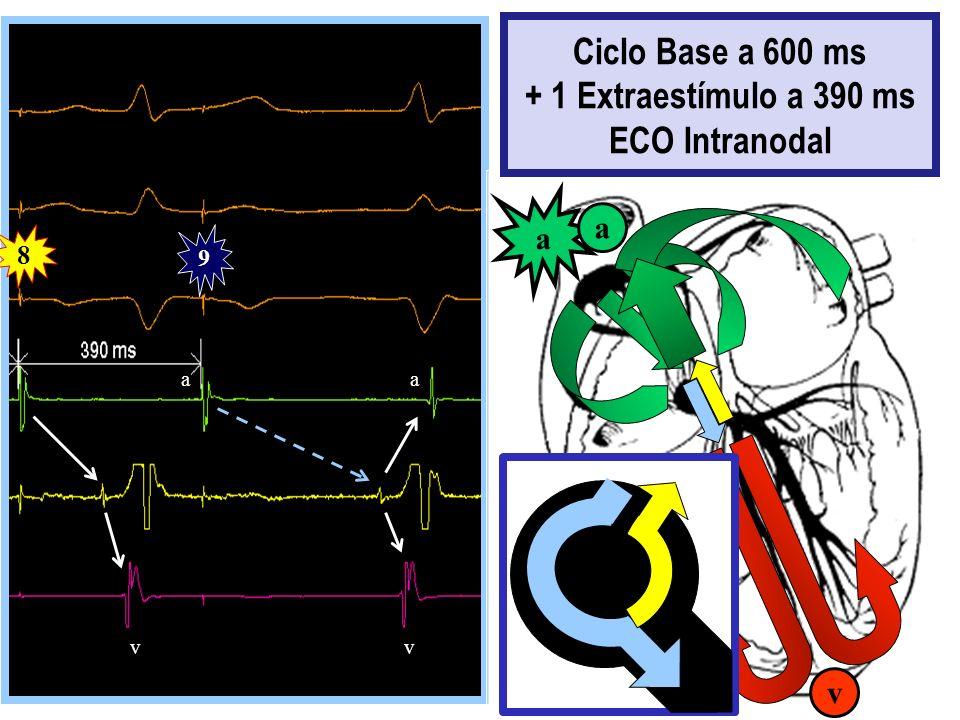 8 9 aa vv a v a Ciclo Base a 600 ms + 1 Extraestímulo a 390 ms ECO Intranodal