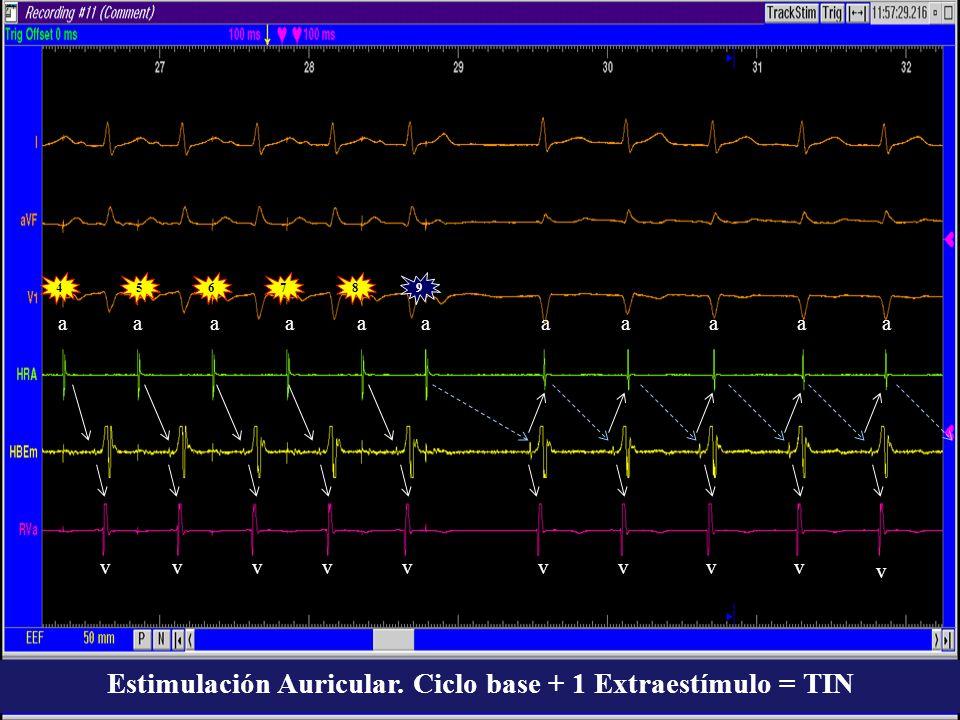 945678 aaaaaa vvvvvvvvv v aaaaa Estimulación Auricular. Ciclo base + 1 Extraestímulo = TIN