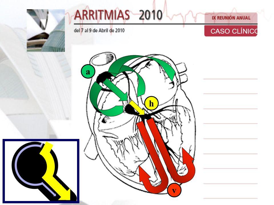 aaa aaa vv vvv hhhhh Estimulación Auricular Continua. Vía Lenta