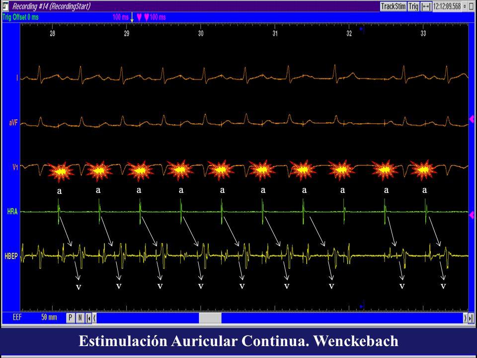 a a aaaaaaaa v vvvvvvvv Estimulación Auricular Continua. Wenckebach
