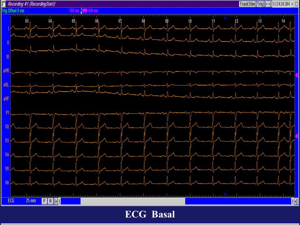 19 aaa aaa aaa vvvvvvvvvv a 2345678 hhhhhhhhhh Estimulación Auricular.