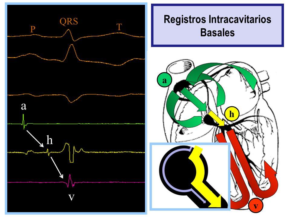 aaa a vvvv hh v a a h v Registros Intracavitarios Basales a h P QRS T