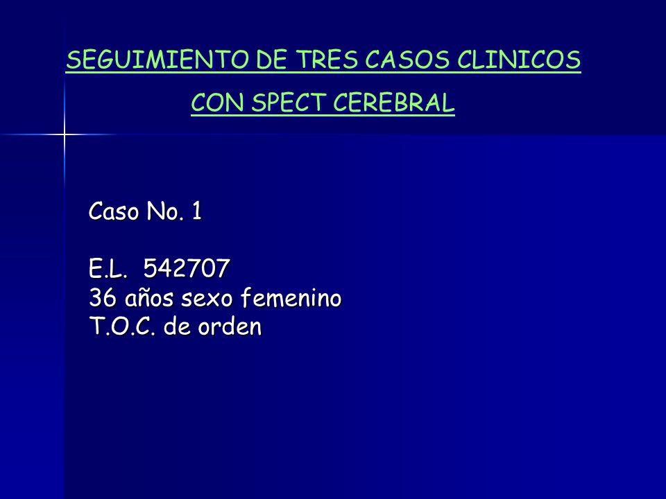 SEGUIMIENTO DE TRES CASOS CLINICOS CON SPECT CEREBRAL SEGUIMIENTO DE TRES CASOS CLINICOS CON SPECT CEREBRAL Caso No. 1 E.L. 542707 36 años sexo femeni