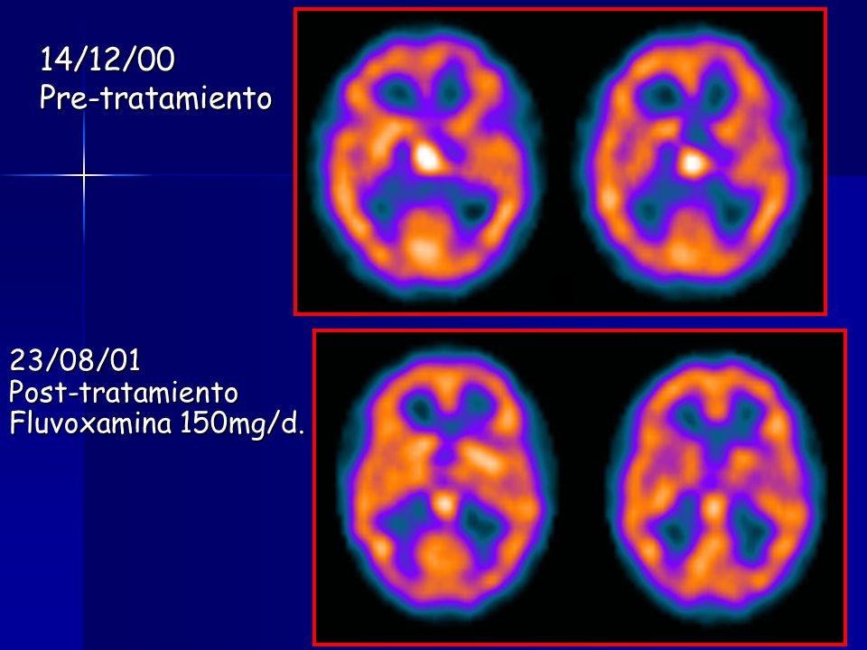 14/12/00Pre-tratamiento 23/08/01Post-tratamiento Fluvoxamina 150mg/d.
