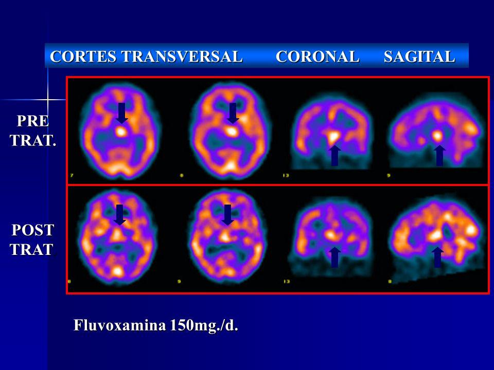 PRETRAT. POST TRAT. CORTES TRANSVERSAL CORONAL SAGITAL Fluvoxamina 150mg./d.