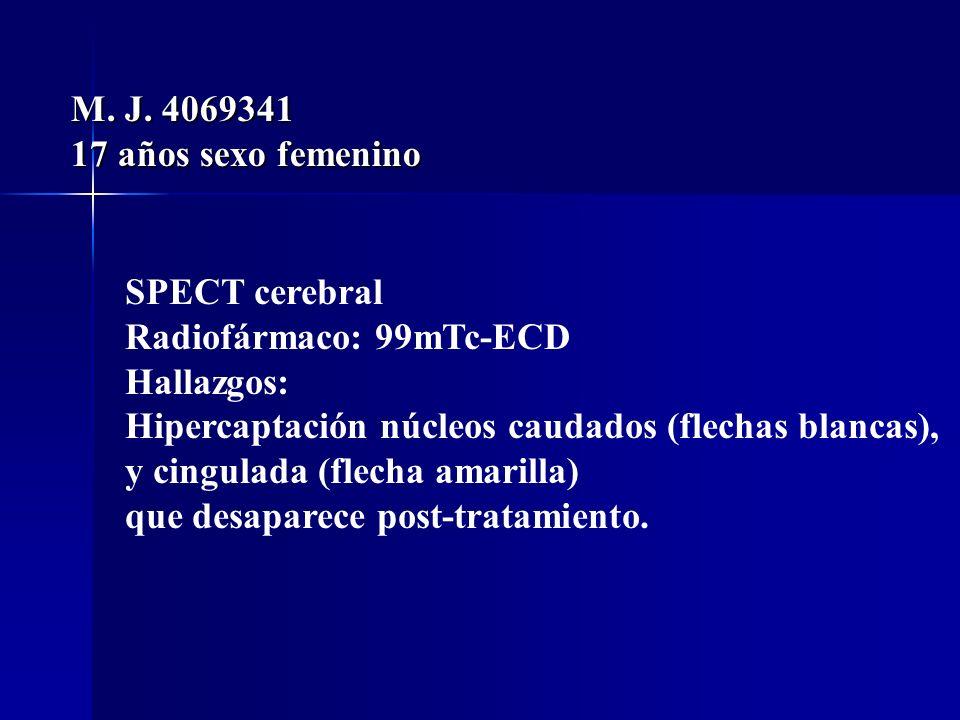 M. J. 4069341 17 años sexo femenino SPECT cerebral Radiofármaco: 99mTc-ECD Hallazgos: Hipercaptación núcleos caudados (flechas blancas), y cingulada (