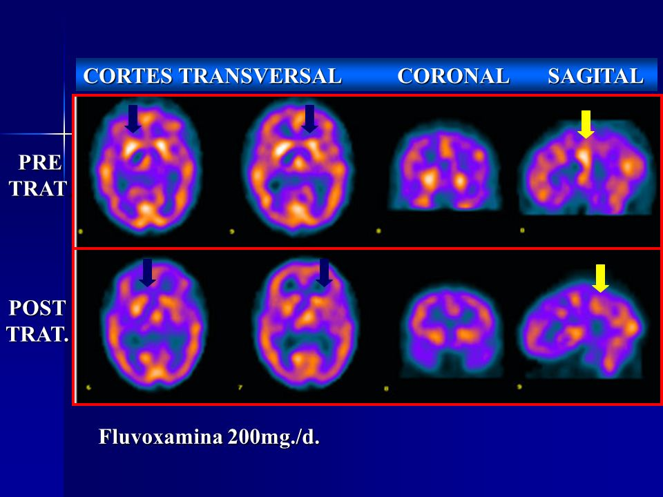PRE TRAT. POSTTRAT. CORTES TRANSVERSAL CORONAL SAGITAL Fluvoxamina 200mg./d.