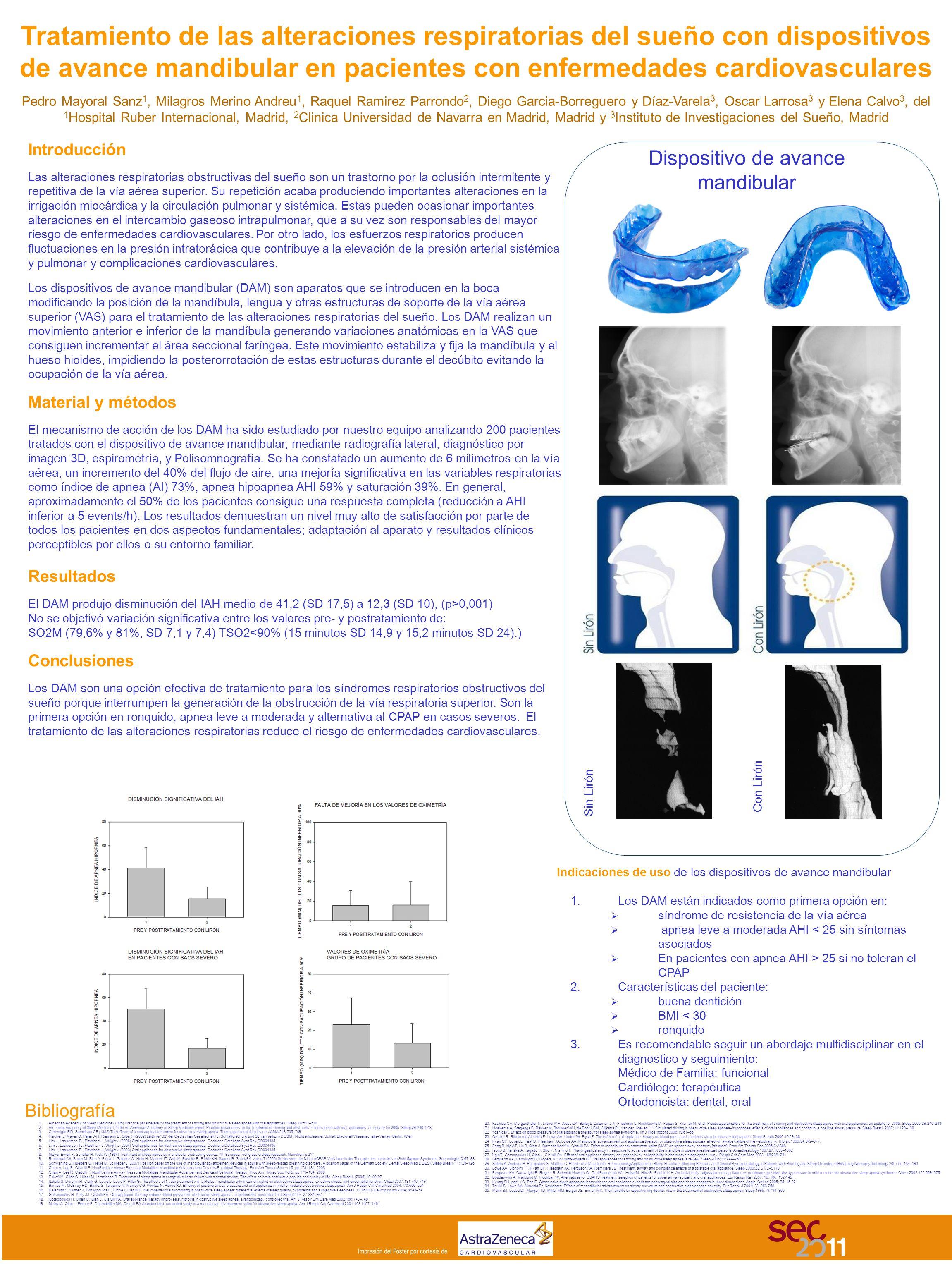 Tratamiento de las alteraciones respiratorias del sueño con dispositivos de avance mandibular en pacientes con enfermedades cardiovasculares Pedro May