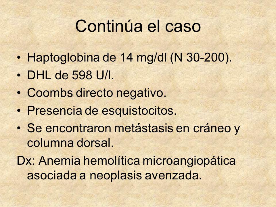 Continúa el caso Haptoglobina de 14 mg/dl (N 30-200). DHL de 598 U/l. Coombs directo negativo. Presencia de esquistocitos. Se encontraron metástasis e