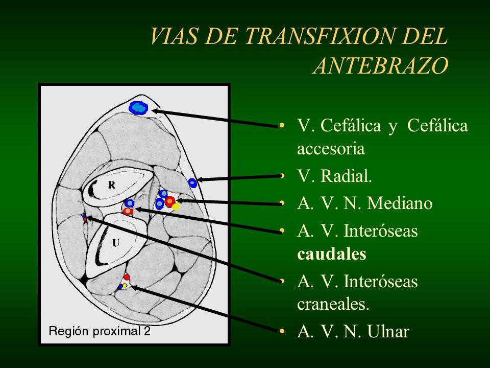 I –E: Medial a la V.cubital media –S: Entre Ext. Dig.lateral y Ext.