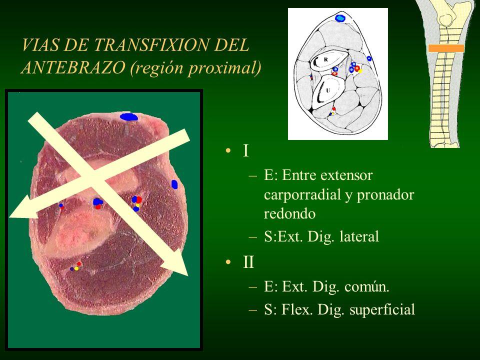 I –E: Entre extensor carporradial y pronador redondo –S:Ext. Dig. lateral II –E: Ext. Dig. común. –S: Flex. Dig. superficial