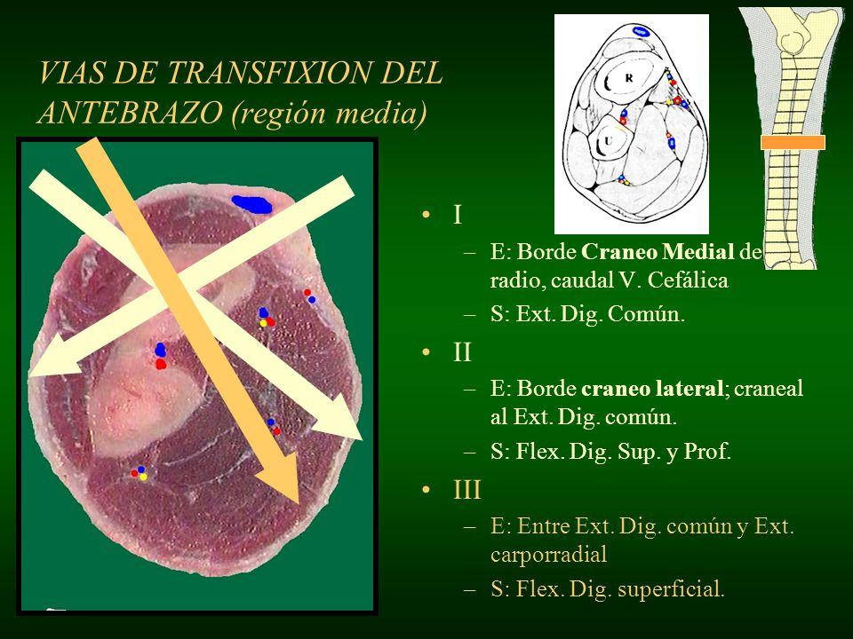 VIAS DE TRANSFIXION DEL ANTEBRAZO (región media) I –E: Borde craneo medial del radio, caudal V.