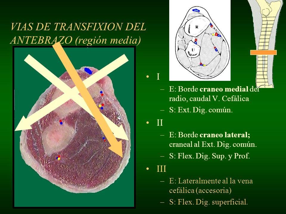 VIAS DE TRANSFIXION DEL ANTEBRAZO (región media) I –E: Borde craneo medial del radio, caudal V. Cefálica –S: Ext. Dig. común. II –E: Borde craneo late