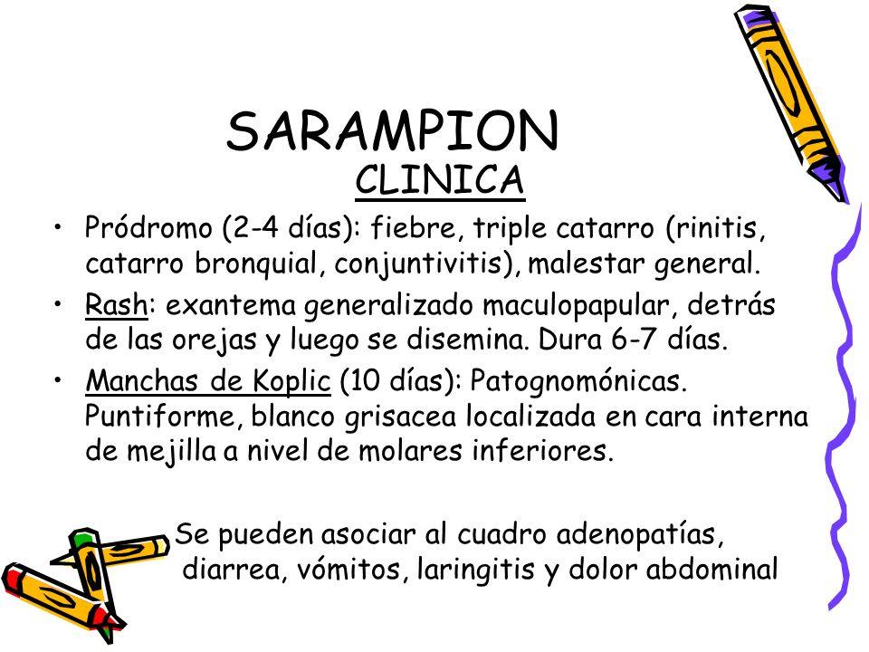 SARAMPION CLINICA Pródromo (2-4 días): fiebre, triple catarro (rinitis, catarro bronquial, conjuntivitis), malestar general. Rash: exantema generaliza