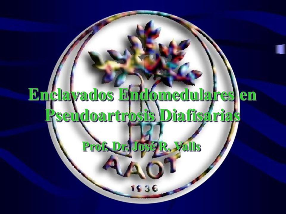 Enclavados Endomedulares en Pseudoartrosis Diafisarias Prof. Dr. José R. Valls