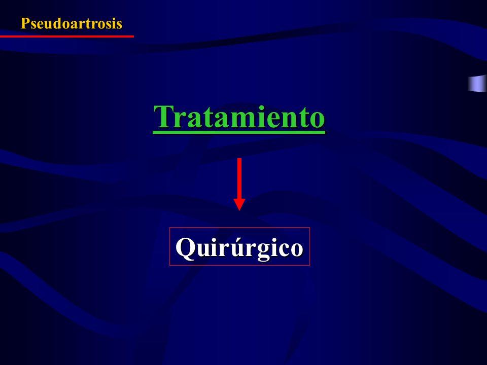 Tratamiento Pseudoartrosis Quirúrgico