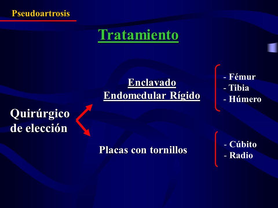 Tratamiento Pseudoartrosis Quirúrgico de elección Enclavado Endomedular Rígido Placas con tornillos - Fémur - Tibia - Húmero - Cúbito - Radio