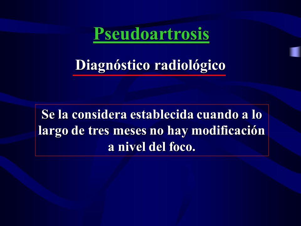 Tipo de Pseudoartrosis Hipertrófica Hipotrófica o Atrófica Pseudoartrosis