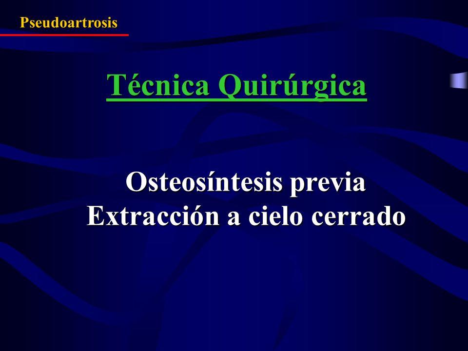 Osteosíntesis previa Extracción a cielo cerrado Pseudoartrosis Técnica Quirúrgica
