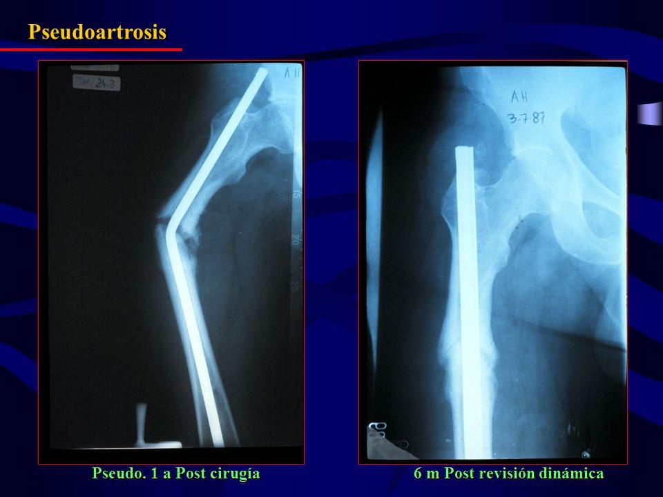 Pseudoartrosis Pseudo. 1 a Post cirugía 6 m Post revisión dinámica