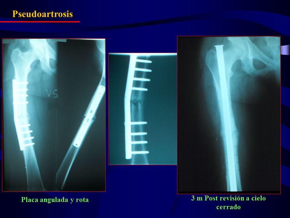 Pseudoartrosis 3 m Post revisión a cielo cerrado Placa angulada y rota