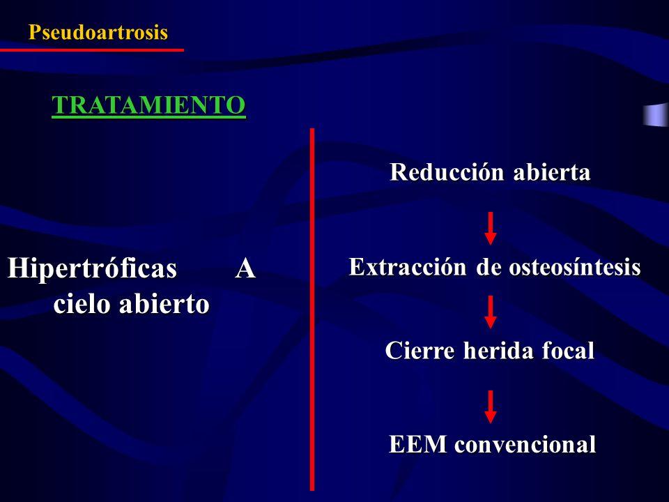 TRATAMIENTO Hipertróficas A cielo abierto Reducción abierta Cierre herida focal EEM convencional Pseudoartrosis Extracción de osteosíntesis