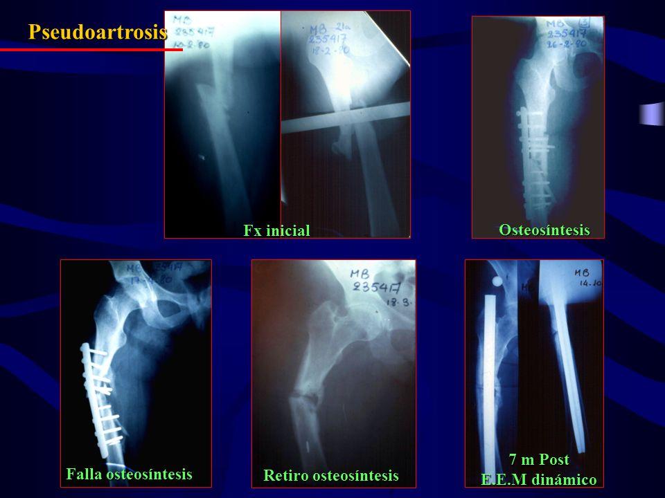 Fx inicial Osteosíntesis Falla osteosíntesis Retiro osteosíntesis 7 m Post E.E.M dinámico Pseudoartrosis