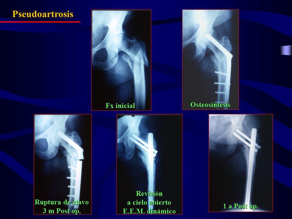 Fx inicial Osteosíntesis Ruptura de clavo 3 m Post op. Revisión a cielo abierto E.E.M. dinámico 1 a Post op. Pseudoartrosis